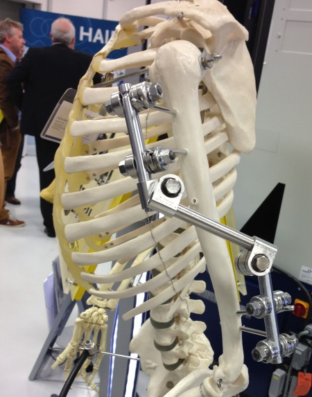 External Fixation, Artificial Joints, Human Spare Parts...